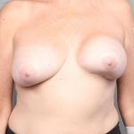 Breast Reconstruction Revision, Dr. Cassileth, Case 6 Before