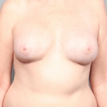 Breast Reconstruction Revision, Dr. Cassileth, Case 6 After