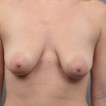 Breast Implant Revision, Dr. Cassileth, Case 18 Before