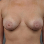 Breast Implant Revision, Dr. Cassileth, Case 18 After