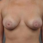 Breast Implant Revision, Dr. Cassileth, Case 18 After