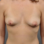 Breast Asymmetry, Dr. Cassileth, Case 8 Before