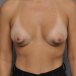 Breast Asymmetry, Dr. Cassileth, Case 8 After