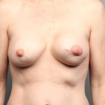 Breast Implant Revision, Dr. Cassileth, Case 20 Before