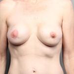 Breast Implant Revision, Dr. Cassileth, Case 20 After