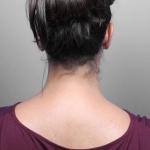Liposuction, Dr. Killeen, Case 7 Before