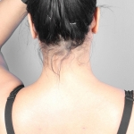 Liposuction, Dr. Killeen, Case 7 After