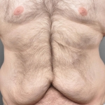 Tummy Tuck, Dr. Cassileth, Case 11 Before