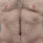 Tummy Tuck, Dr. Cassileth, Case 11 After