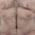 Tummy Tuck, Dr. Cassileth, Case 11 After
