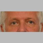 Blepharoplasty, Dr. Sunder, Case 4 After