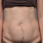 Tummy Tuck, Dr. Cassileth, Case 13 Before