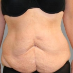 Tummy Tuck, Dr. Cassileth, Case 16 Before