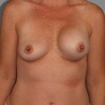 Breast Asymmetry, Dr. Cassileth, Case 1 Before