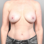 Breast Implant Revision, Dr. Cassileth, Case 23 Before
