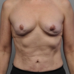 Breast Implant Revision, Dr. Cassileth, Case 21 Before