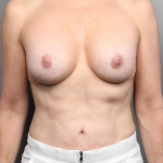 Breast Implant Revision, Dr. Cassileth, Case 21 After