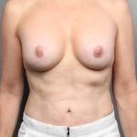 Breast Implant Revision, Dr. Cassileth, Case 21 After