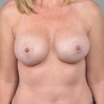 Breast Asymmetry, Dr. Cassileth, Case 1 After