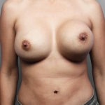 Breast Implant Revision, Dr. Cassileth, Case 22 Before