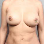 Breast Implant Revision, Dr. Cassileth, Case 22 After