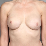 Breast Implant Revision, Dr. Cassileth, Case 24 Before