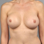 Breast Implant Revision, Dr. Cassileth, Case 24 After