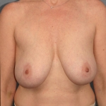 Breast Lift, Dr. Cassileth, Case 1 Before