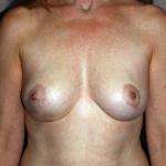 Breast Lift, Dr. Cassileth, Case 1 After