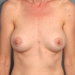 Breast Implant Revision, Dr. Cassileth, Case 4 After
