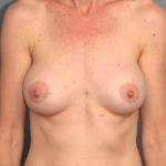 Breast Implant Revision, Dr. Cassileth, Case 4 After