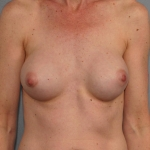 Capsular Contracture, Dr. Cassileth, Case 40 Before