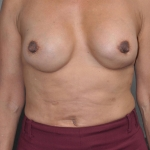Breast Implant Revision, Dr. Cassileth, Case 5 After