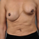 Capsular Contracture, Dr. Cassileth, Case 5 Before
