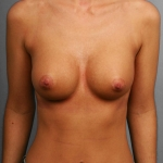 Breast Implant Revision, Dr. Cassileth, Case 6 After