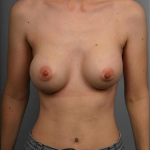 Capsular Contracture, Dr. Cassileth, Case 60 Before