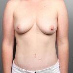 Tummy Tuck, Dr. Cassileth, Case 17 After
