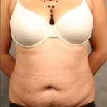 Tummy Tuck, Dr. Cassileth, Case 6 Before