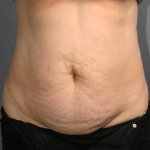 Tummy Tuck, Dr. Cassileth, Case 2 Before