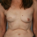 Breast Reconstruction Fat Transfer, Dr. Cassileth, Case 8 Before