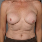 Breast Reconstruction Fat Transfer, Dr. Cassileth, Case 8 After