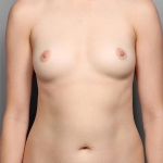 Breast Fat Transfer, Dr. Killeen, Case 1 Before