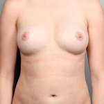 Breast Fat Transfer, Dr. Killeen, Case 1 After