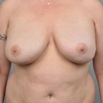 Reconstruction With Fat Transfer, Dr. Cassileth, Case 1 Before
