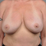 Reconstruction With Fat Transfer, Dr. Cassileth, Case 1 After