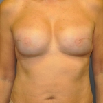 Breast Reconstruction Fat grafting, Dr. Cassileth, Case 2 After