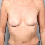 Breast Augmentation, Dr. Killeen, Case 3 Before