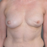 Breast Reconstruction with Fat Transfer, Dr. Cassileth, Case 4 Before
