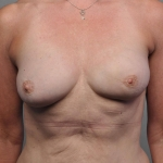 Breast Reconstruction with Fat Transfer, Dr. Cassileth, Case 4 After