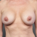 Breast Fat Transfer, Dr. Cassileth, Case 4 Before
